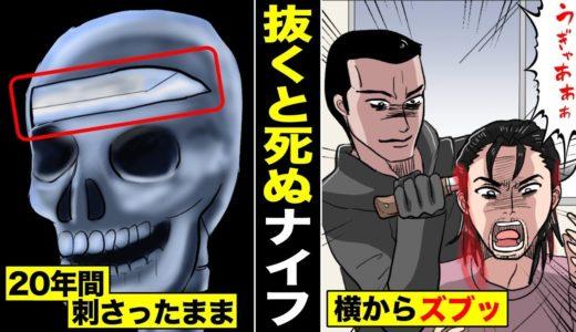 【漫画】20年間、頭にナイフが刺さったままの男。医者に「抜くと死ぬ」と言われて・・・